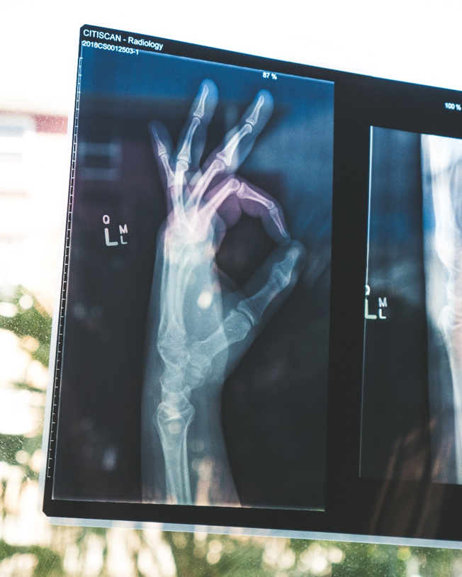 """An x-ray of a hand in the """"A-okay"""" position."""